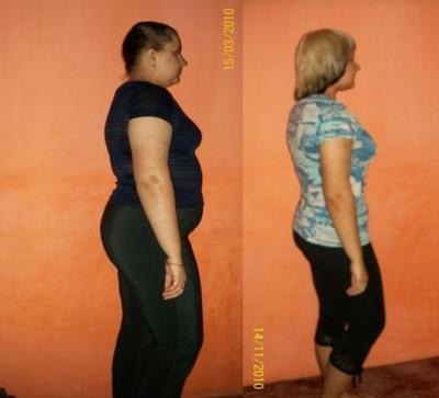 Система 60 после похудания